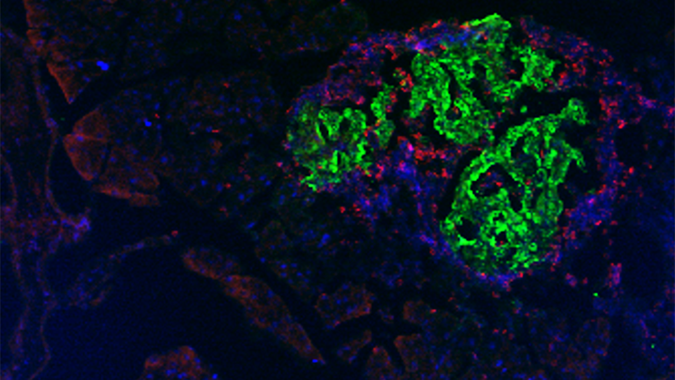 Microscopy image of a pancreas from a diabetic mouse